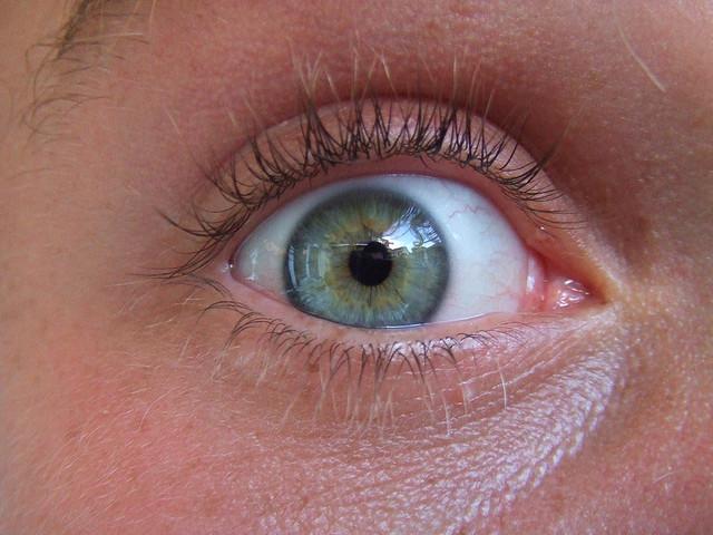 Imagen de un ojo